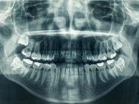 רשלנות רפואית של רופא שיניים