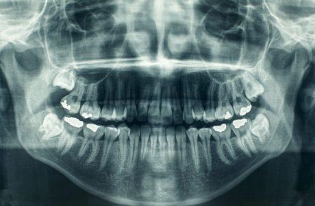 רשלנות כתוצאה מאי מומחיותו של רופא השיניים